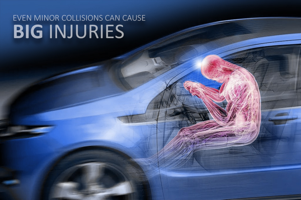 Charles McCorquodale: Accident Injury Attorney in Mobile, AL